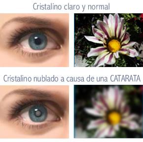 img_catarata